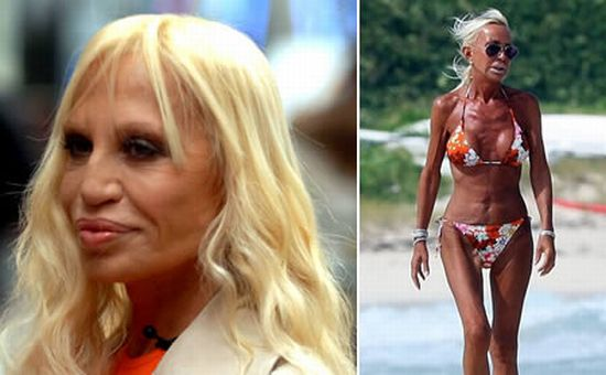 Donatella Versace after surgery
