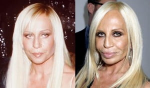 Donatella Versace plastic surgery gone wrong pic