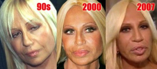 donatella versace plastic surgery disaster story. Black Bedroom Furniture Sets. Home Design Ideas