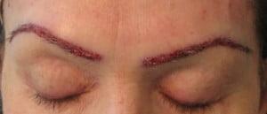Implant of Eyebrow