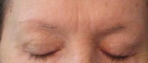 Implants surgery of Eyebrow