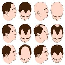 Receding Hairline Signs in Men
