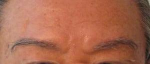 (source: hairtransplanimplantation-eyebrowst.com)