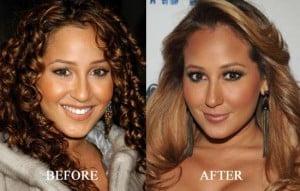 Adrienne Bailon plastic surgery