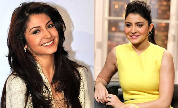 Anushka Sharma plastic surgery before and after