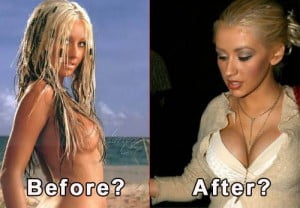 Christina Aguilera breast implants before and after