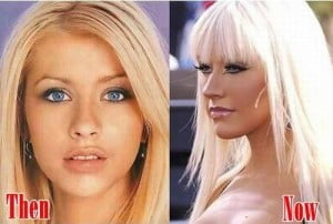 Christina Aguilera nose job before and after
