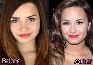 Demi Lovato nose job before and after