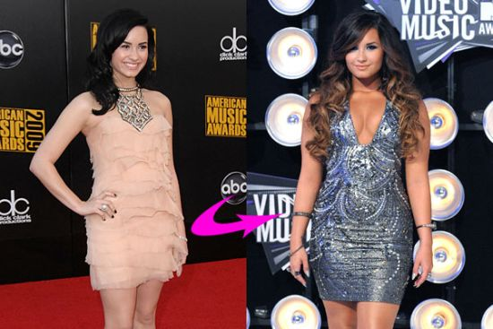 Demi Lovato plastic surgery before and after