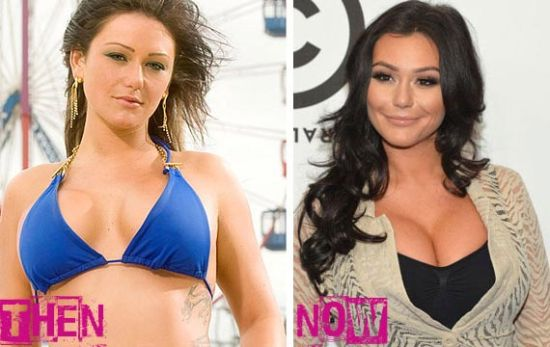 Jwoww plastic surgery photos