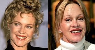 melanie griffith before and after