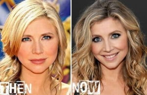 Sarah Chalke plastic surgery before and after