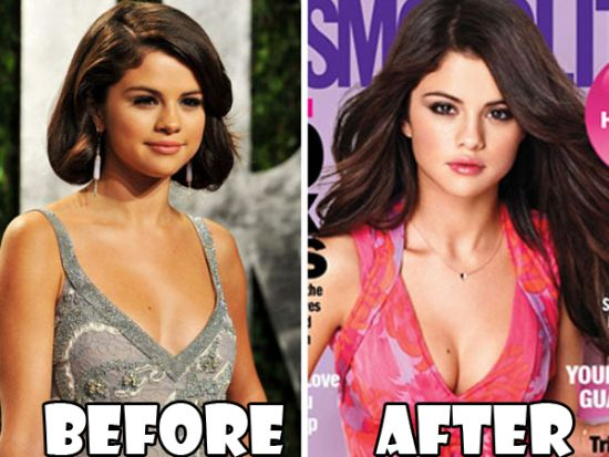 Selena Gomez breast implants before after