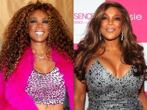 Wendy Williams breast augmentation before and after