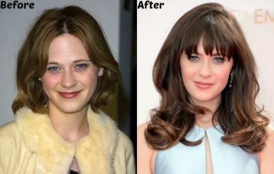 Zooey Deschanel plastic surgery