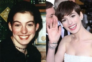 Anne Hathaway then and now