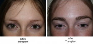 Eyebrow Restoration Surgery Before and After Photos