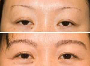 Eyebrow implants before after
