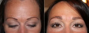 Eyebrow implants before and after photos