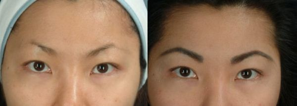 How Much Do Eyebrow Implants Cost: Before and after Photos