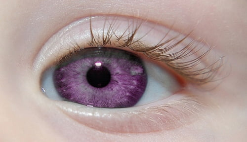 Purple Eye Disease