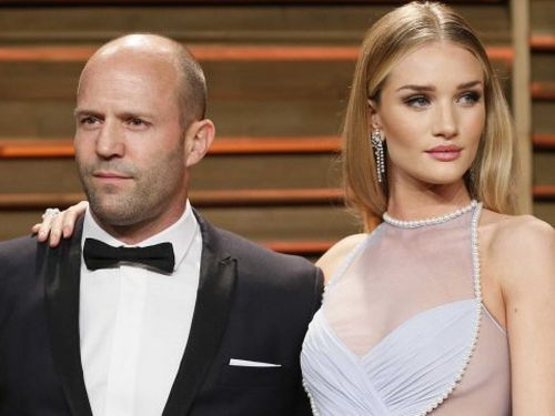 Receding Hairline in Men & Women: Causes, Signs, and Treatment Rosie Huntington Whiteley Married