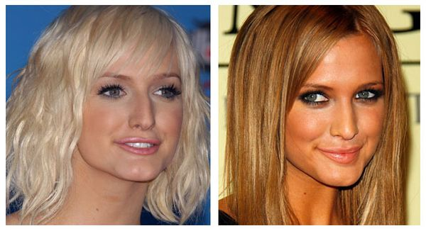 Ashlee Simpson plastic surgery photo
