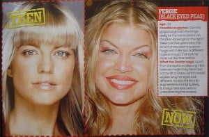 Fergie before plastic surgery and now