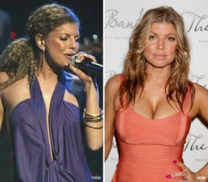 Fergie breast implants before and after