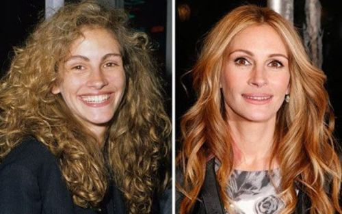 Julia Roberts Lip and Cheek Fillers