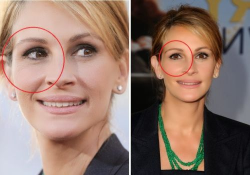 Julia Roberts plastic surgery photo