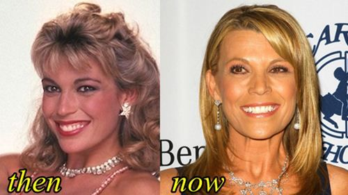 Vanna White plastic surgery photo