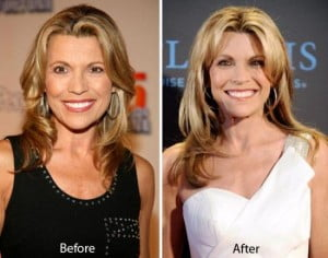Vanna White plastic surgery before and after