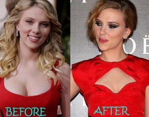 Scarlett Johansson breast reduction before after