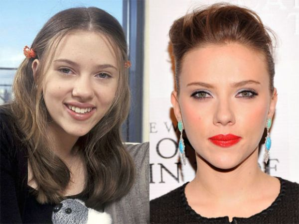 Image result for scarlett johansson cosmetic surgery