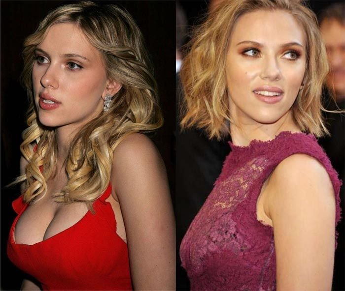 scarlett johansson plastic surgery before after