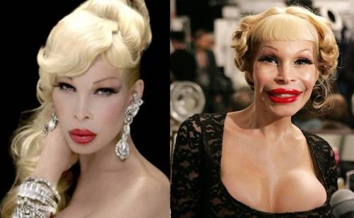 Amanda Lepore plastic surgery photo