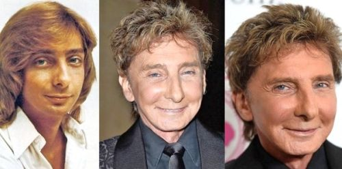 Celebrity facelifts 2019