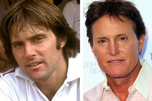 Bruce Jenner plastic surgery before after