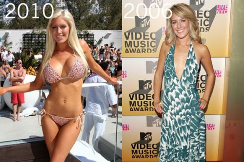 Heidi Montag plastic surgery gone wrong