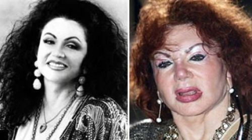 Jackie Stallone plastic surgery gone wrong
