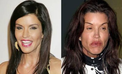 Face lifts before and after celebrity cosmetic surgery