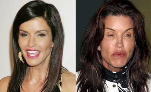 Janice Dickinson Plastic Surgery