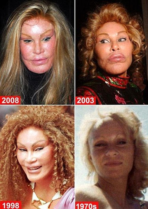 Jocelyn Wildenstein Plastic Surgery Before Photos