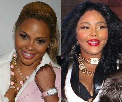 Lil Ki plastic surgery gone wrong