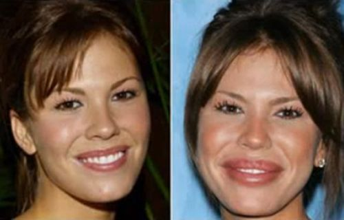 Hollywood celebrity botox gone
