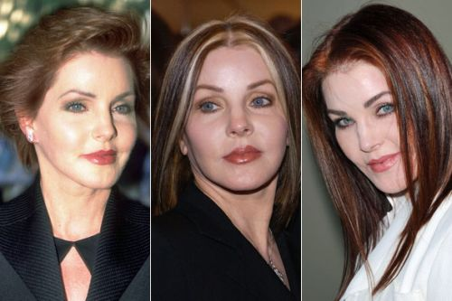 Priscilla Presley plastic surgery before and after