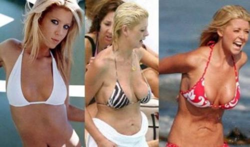 Tara Reid plastic surgery now and then