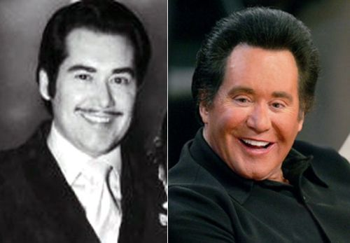 Wayne Newton plastic surgery gone wrong