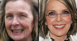 diane keaton before and after